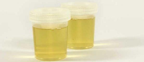 Can I put urine in my compost bin?